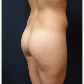 25-34 year old woman treated with 548cc Round Silicone Butt Implants for her Augmentation before 3043077