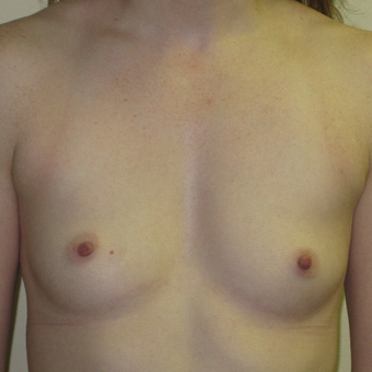 25-34 year old woman treated with Breast Augmentation before 3364995