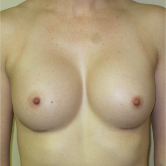 25-34 year old woman treated with Breast Augmentation after 3364995