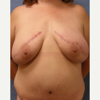 35-44 year old woman treated with Breast Reconstruction after 3630751