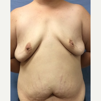 35-44 year old woman treated with Breast Reconstruction before 3630751
