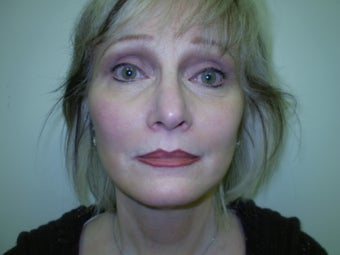 Mini Lift providing natural rejuvenation for 48 year old female