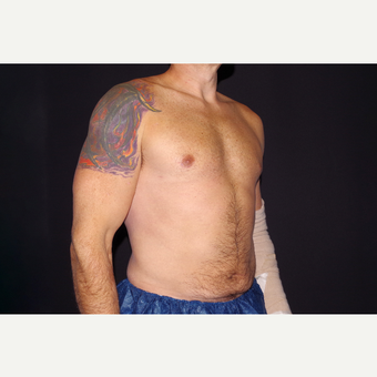 35-44 year old man treated with Smart Lipo after 3645799