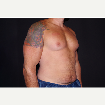 35-44 year old man treated with Smart Lipo before 3645799