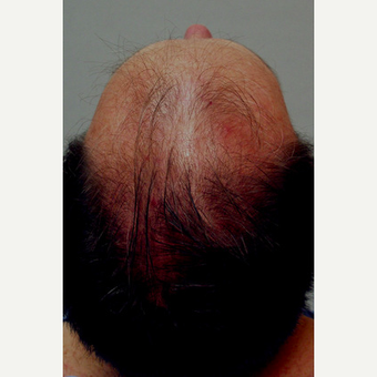 Hair Transplant before 3241322