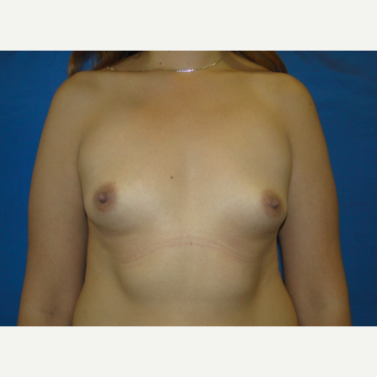 500 cc Silicone Breast Implants before 3850419