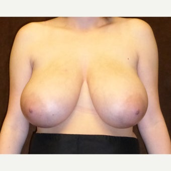 25-34 year old woman treated with Breast Reduction before 1833290