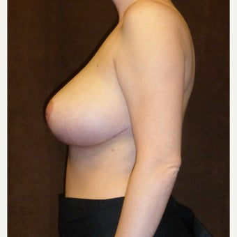 25-34 year old woman treated with Breast Reduction 1833290