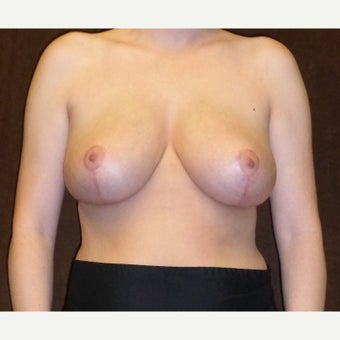 25-34 year old woman treated with Breast Reduction after 1833290