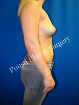 25-34 year old woman treated with Breast Implant Removal 1675482