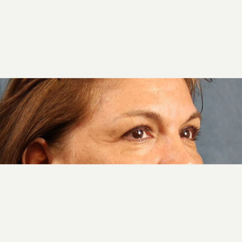 Eyelid Surgery before 3123653