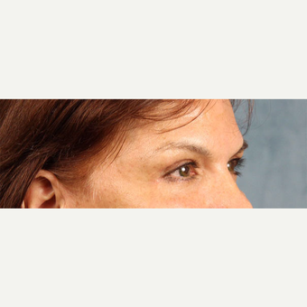 Eyelid Surgery after 3123653
