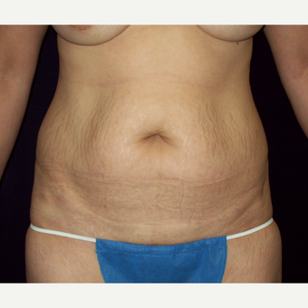 45-54 year old woman with a Full Tummy Tuck before 3141723
