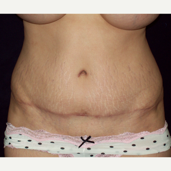 45-54 year old woman with a Full Tummy Tuck after 3141723