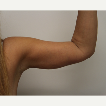 45-54 year old woman treated with Arm Lift after 3259113