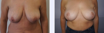 54 Year Old Female Breast Uplift Patient before 1346642