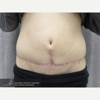 18-24 year old woman treated with Panniculectomy after 1566785