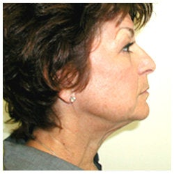 Upper and lower eyelids / face and neck lift and brow lift. before 334397