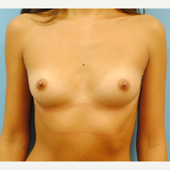 23 year old woman treated with Breast Augmentation using 350  cc high profile silicone implants before 3219962