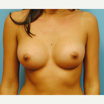 23 year old woman treated with Breast Augmentation using 350  cc high profile silicone implants after 3219962