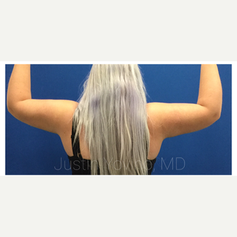 18-24 year old woman treated with Liposculpture after 3495410
