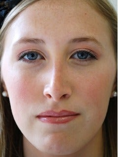 18-24 year old woman treated with Rhinoplasty after 3259942