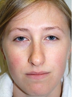 18-24 year old woman treated with Rhinoplasty before 3259942