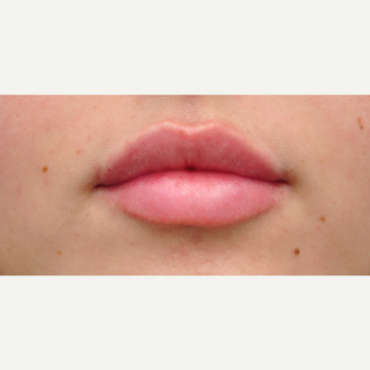 18-24 year old woman treated with Lip Augmentation after 3564995