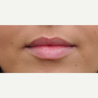 18-24 year old woman treated with Lip Augmentation before 3564995
