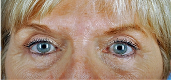 68 year old woman treated with Brow Lift after 3839949