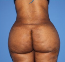 Oval buttock implants plus fatgrafting after 3035892