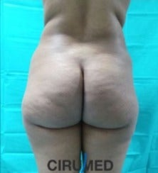 Oval buttock implants plus fatgrafting before 3035892