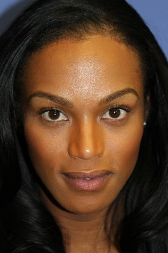 Facial feminisation tracheal shave plastic surgeons