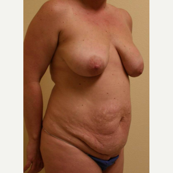 45-54 year old woman treated with Mommy Makeover before 3434683
