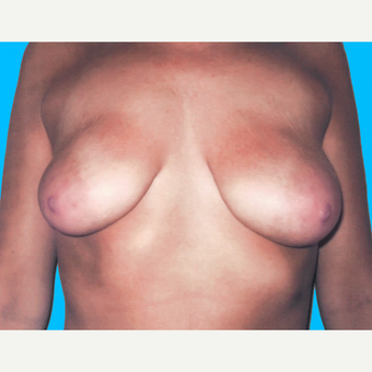 Breast Lift with Implants before 3748858