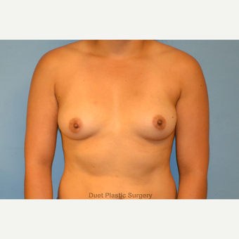 24 year old woman treated with saline breast implants before 3105923