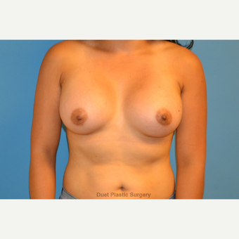 24 year old woman treated with saline breast implants after 3105923