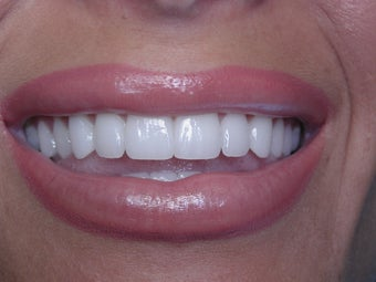 25-34 year old woman treated with Porcelain Veneers after 2221004