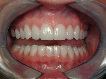 25-34 year old woman treated with Porcelain Veneers 2221004