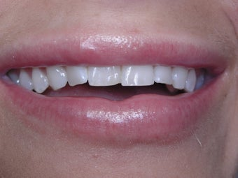 25-34 year old woman treated with Porcelain Veneers before 2221004