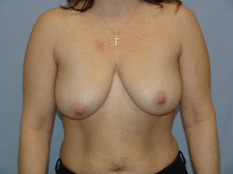 Mastopexy before 99654