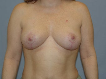 Mastopexy after 99654