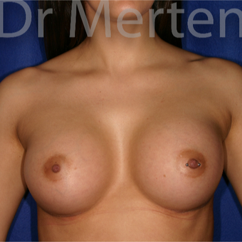 25-34 year old woman treated with Breast Augmentation after 3551926