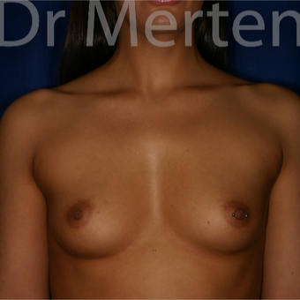 25-34 year old woman treated with Breast Augmentation before 3551926