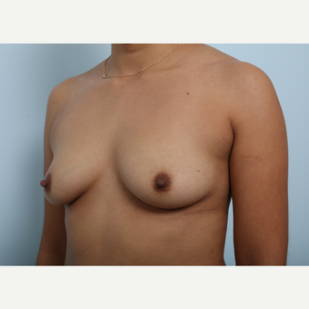 Breast Augmentation before 3345264