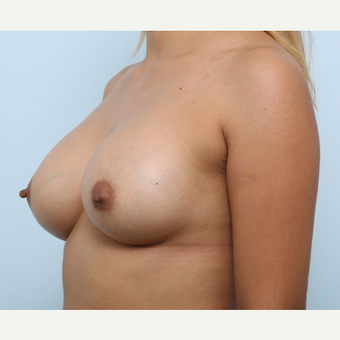 Breast Augmentation after 3345264