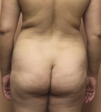 34 year old woman treated with Brazillian Butt Lift before 2062944