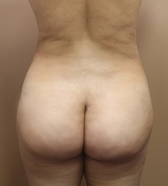 34 year old woman treated with Brazillian Butt Lift after 2062944