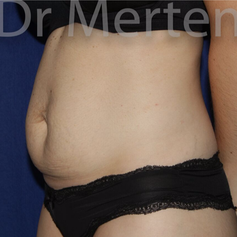 Tummy Tuck before 3599421