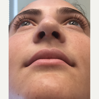 18-24 year old woman treated with Rhinoplasty after 3325078